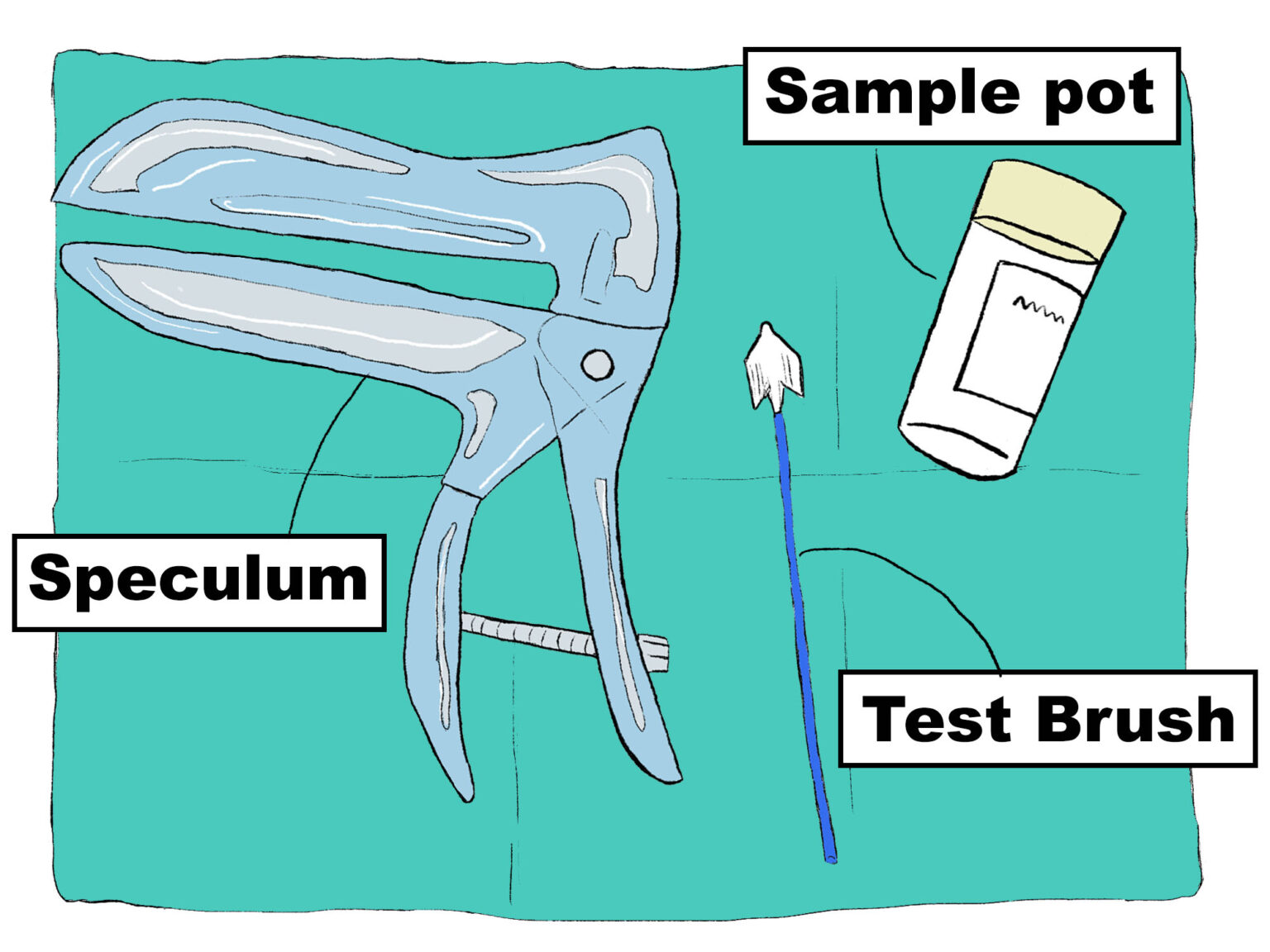 A digital drawing of material used to perform a SMEAR and a Sample test. The drawing shows the three different tools used to perform a SMEAR test which checks the health of the cervix, and a Sample test, to check on the general health of the internal genital organs. Three tools are depicted. The first tool is a speculum. The second tool is a test brush. A test brush has a long and thin handle with a small brush at the end. The third tool is a sample pot, which is a plastic cylinder where the sample from the test brush is securely stored for analysis. All of the three tools are sterile.