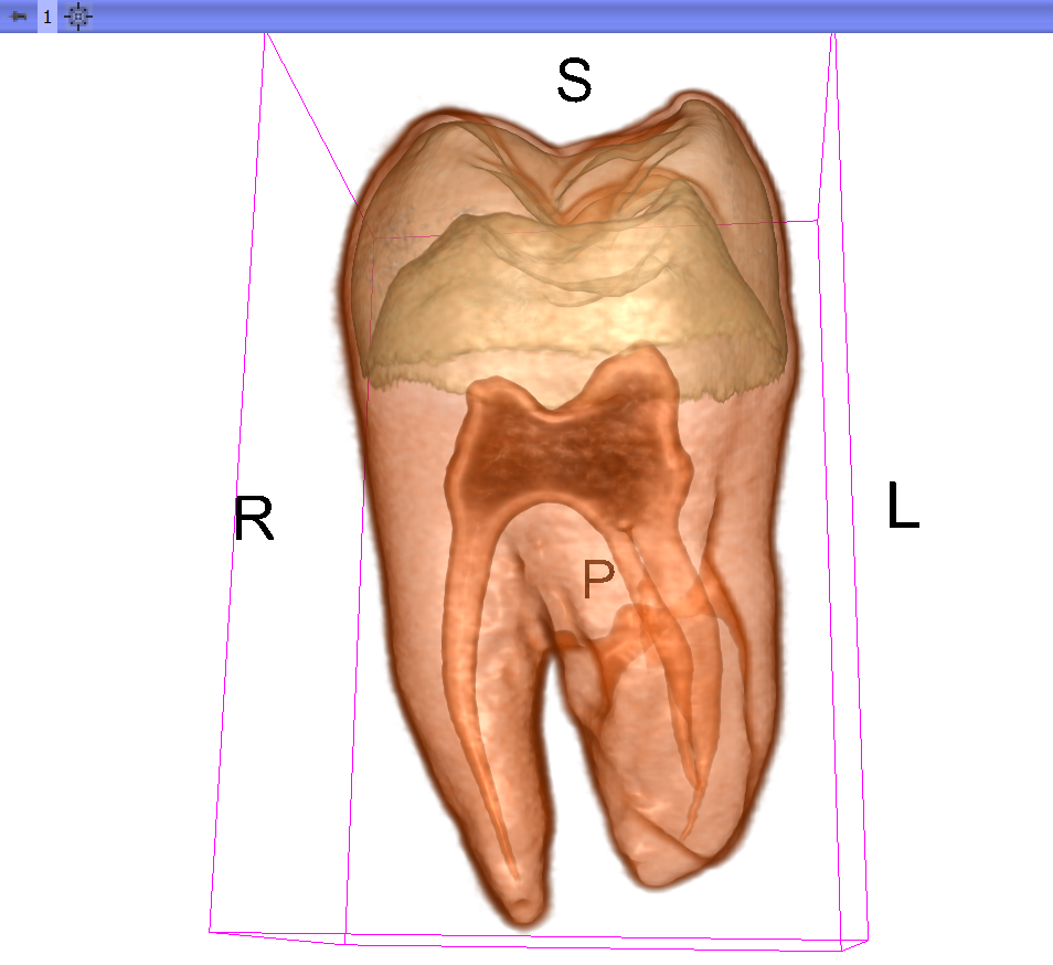 Direct Volume Rendering of the Tooth