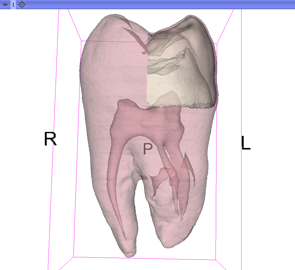 Indirect Volume Rendering of the Tooth