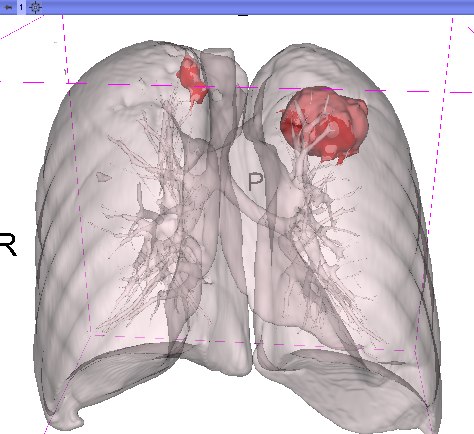 Carcinoma of the Lungs