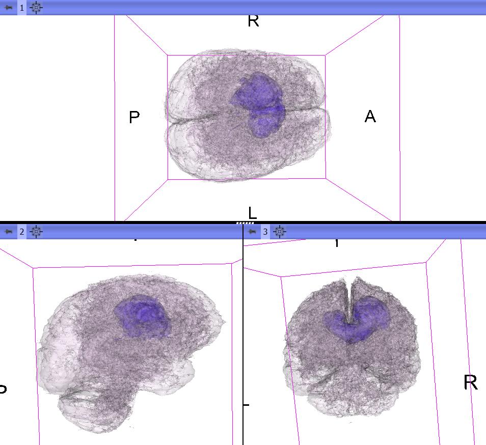 Visualisation of the Brain Tumour